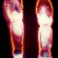 Kirlian photograph Fingertips