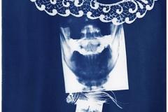 Cyanotype Hilde Braet Anatomical Blueprint