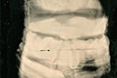 Wetplate collodion Self Portrait as an Encephalopod